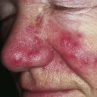 Rosacea: rode vlekken in gezicht, rode vlekken in nek, hals