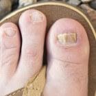 Schimmelnagels: symptomen wit-gele, groene of bruine nagels