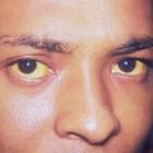 Gele ogen en gele huid: oorzaken, symptomen en behandeling