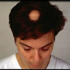 Alopecia areata: pleksgewijze haaruitval hoofd, wenkbrauwen