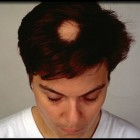Alopecia areata: symptomen, oorzaak, behandeling en prognose