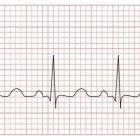 Angina pectoris (hartkramp), vaak een stille voorbode