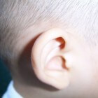 Jeuk in oor: oorzaken van jeukende oren of oorjeuk