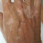 Vitiligo: als de kleur geleidelijk verdwijnt uit de huid