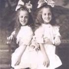 Bekende Siamese tweelingen - waarom zijn ze beroemd?