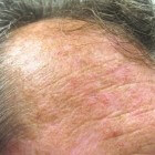 Plekjes op de huid, ruw en lichtbruin: oorzaken en symptomen