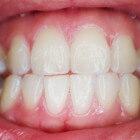 Bultje op tandvlees: symptomen & oorzaken bult op tandvlees