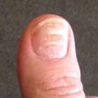 Lijnen van Beau: Overdwarse groeven nagel / deuken nagel