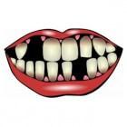 Parodontitis: ontsteking van tandvlees rondom de tanden