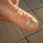 Soorten nagelafwijkingen: symptomen, oorzaak en behandeling