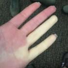Fenomeen van Raynaud: koude, dove, pijnlijke vingers/tenen