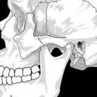 Trismus: kaak op slot. Oorzaken en behandeling