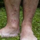 Rode vlekken op benen en voeten, zonder schilfering