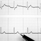 Hartritmestoornissen – tachycardie (snelle hartslag)