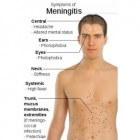Hersenvliesontsteking behandeling, gevolgen en besmetting