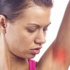Jeuk en/of pijn onder oksel: met uitslag, plekjes en vlekken
