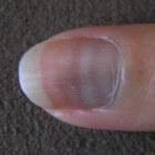Groeven of ribbels in nagels: oorzaken van geribbelde nagels