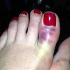 Gebroken teen: symptomen en behandeling gebroken tenen