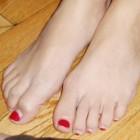 Gekneusde teen: oorzaken en behandeling van gekneusde tenen