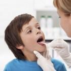 Zweertjes op tong, zweertjes in de mond: Gingivostomatitis