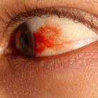 Bloed in oog: oorzaak bloeduitstorting op het oogwit