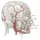 Hoofdpijn bij de slaap, links/rechts: arteriitis temporalis