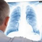 Longfibrose: symptomen, oorzaken, behandeling en prognose