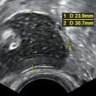 Eierstokcyste (cyste op de eierstok): symptomen & oorzaken