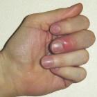 Ontstoken vinger: symptomen, oorzaak en behandeling van fijt