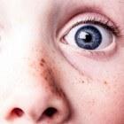 Hypochondrie: oorzaak, adviezen en behandeling