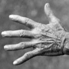 Oorzaak en behandeling van het carpale tunnelsyndroom