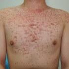 Gistpuistjes symptomen: rode bultjes en puistjes op de huid