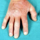 Dermatitis herpetiformis, ziekte van Dühring: symptomen
