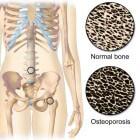 Osteoporose behandeling: medicatie, injecties en voeding