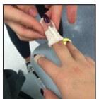 Gebroken vinger: oorzaken, symptomen, behandeling en herstel