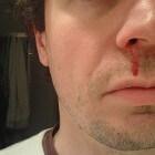 Eerste hulp (EHBO) bij neusletsel