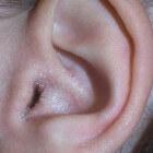 Korstje op oor of bultje op oorschelp: oorzaak & behandeling