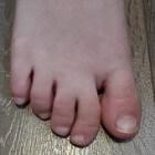 Syndactylie: met elkaar vergroeide tenen of vingers