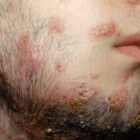 Baardschurft of tinea barbae: schimmelinfectie baardstreek