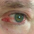 Rode ogen: oorzaken rood oog, bloeddoorlopen ogen en oogwit