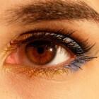 Drusen van de oogzenuw: Gezichtsvelduitval in de ogen