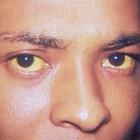 Gele oogkleur: Oorzaken van geelverkleuring van de ogen