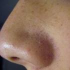 Mee-eters verwijderen op neus en gezicht: tips behandeling