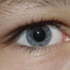 Leukocorie: Witte pupilreflex in het oog