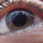 Primair congenitale glaucoom: Aangeboren verhoogde oogdruk