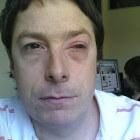 Iritis: Ontsteking iris in oog met pijn en fotofobie