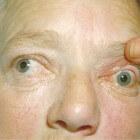 Exoftalmie, proptosis: Uitpuilende ogen