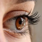 Anisocorie: twee ongelijke pupillen