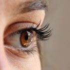 Oogziekte door schildklieraandoening met uitpuilende ogen