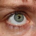 Droge ogen syndroom: Oogimplantaat maakt tranen bij patiënt